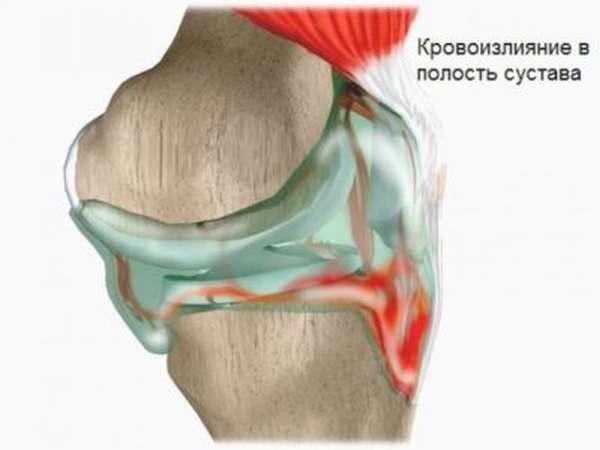 Гематома на ноге после удара - опасно или нет?
