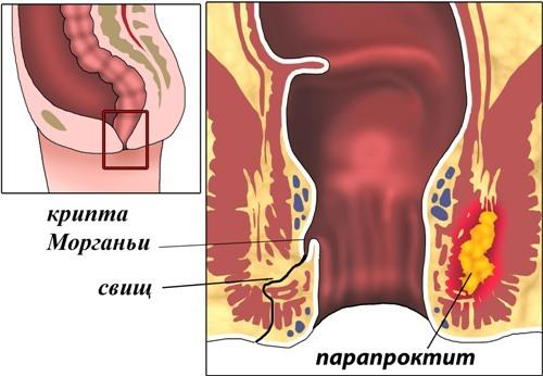Шишка в заднем проходе у мужчин и женщин - причины с фото