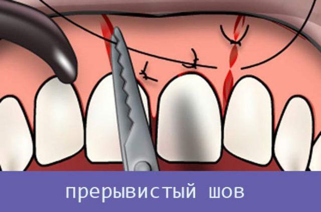 Швы после удаления зуба мудрости: как снимают и больно ли