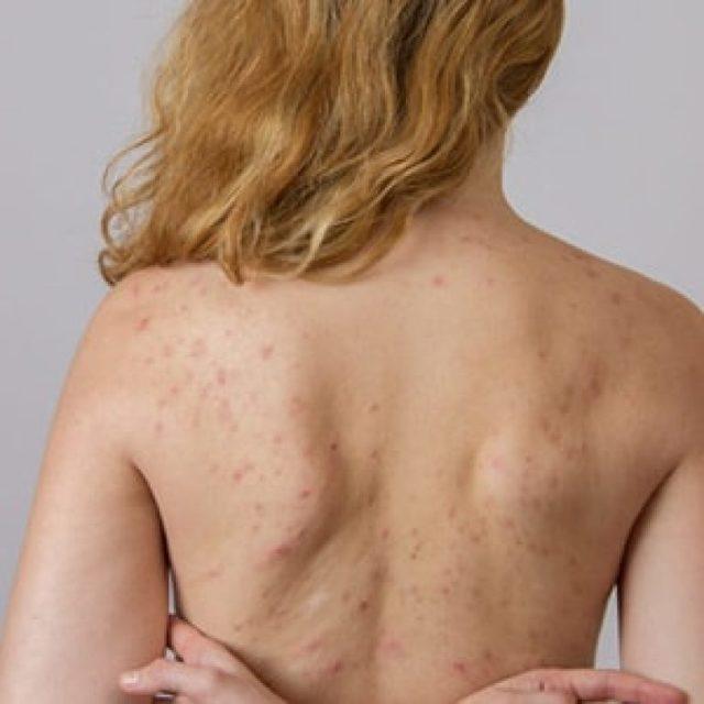Прыщи на спине у женщин или мужчин: фото, причины, лечение