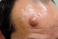 Злокачественные папилломы на коже (в паху, на лице, под мышками)