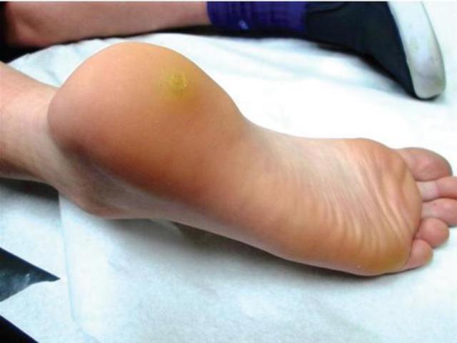 Папиллома на ноге, фото, причины, как лечить народными средствами