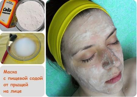 Воспаленные прыщи на лице, фото, причины и как убрать за одну ночь