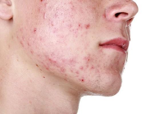 Шишка на голове под кожей, фото, причины, боли и лечение