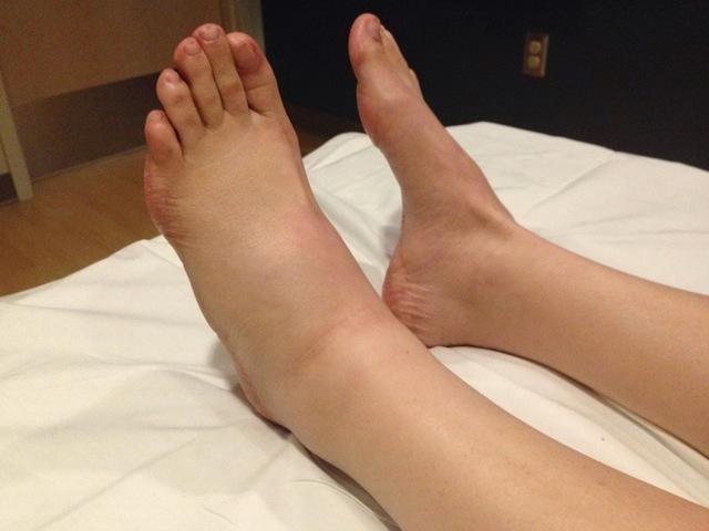 Почему опухают ноги внизу - все 4 причины и что делать