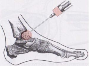 Шишка на щиколотке: фото и что делать если появилась на внутренней стороне
