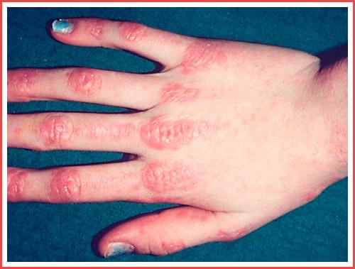 Пятна на коже с красным ободком, почему они появляются на теле