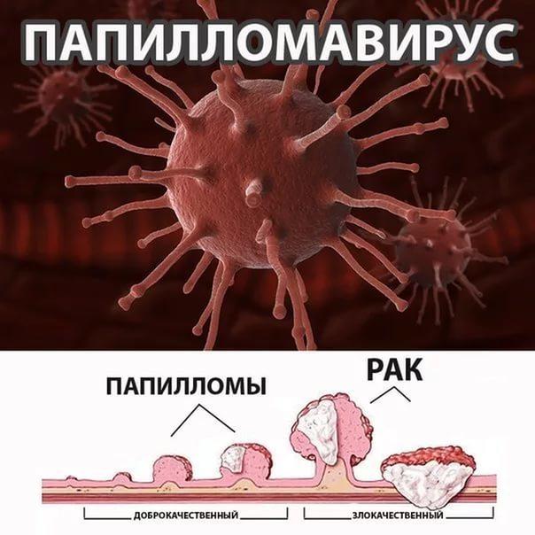 Папилломы на губах, причины, как выглядит на фото и как убрать