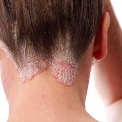 Красный плоский лишай у человека: причины, фото и чел лечить