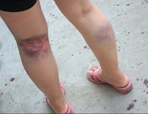 Лопнула вена на ноге - что это может быть и к какому врачу пойти