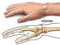 Шишка на запястье руки с внутренней стороны - фото и причины