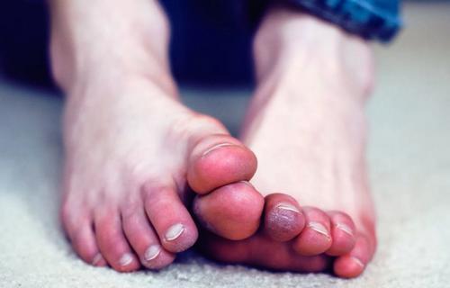 Немеют пальцы на ногах? Все 4 причины и что делать