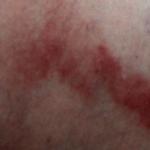 Красные пятна, похожие на ожоги, фото и причины появления