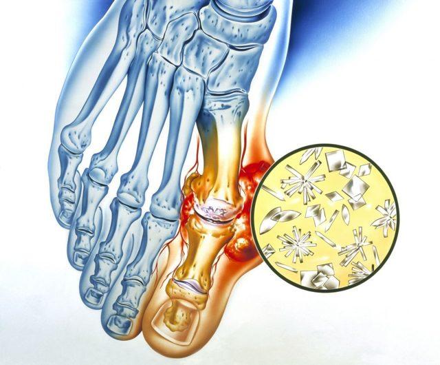 Болит палец на ноге - причины и к какому врачу обратиться