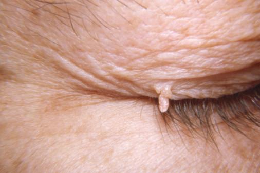 Можно ли удалять папилломы на теле (веке, лице, глазу, шее)