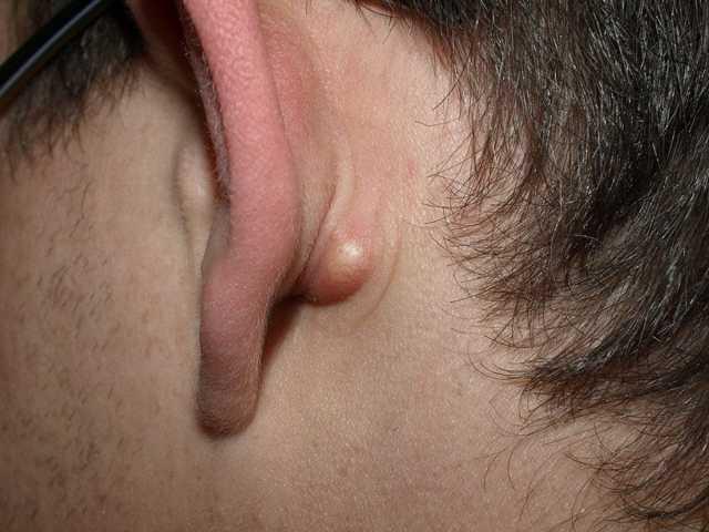 Прыщи за ушами и на мочке уха: фото, причины и что делать