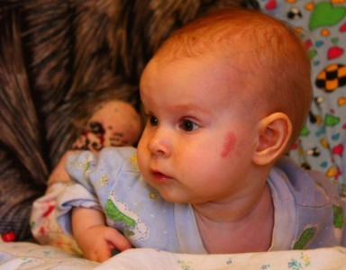 Сосудистые пятна на коже у ребенка и у новорожденного, фото и причины