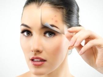 Как убрать красные пятна после прыщей на лице