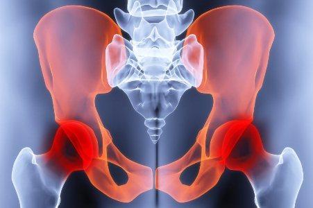 Растяжение связок тазобедренных суставов