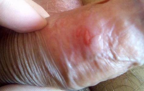 Трещины на крайней плоти: фото, причины у мужчин, лечение
