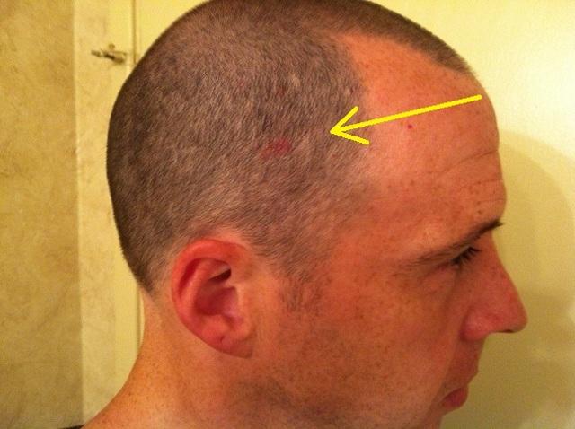 Красные пятна на голове у ребенка и взрослых, все причины