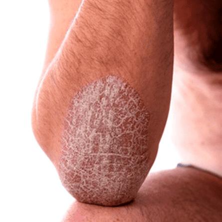 Псориаз на коленях: фото, причины и как убрать шелушение