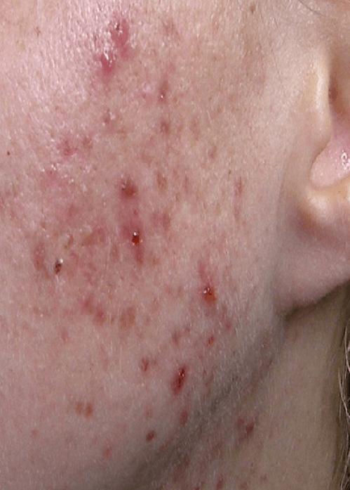 Простудные прыщи на лице: фото, причины и как быстро вылечить