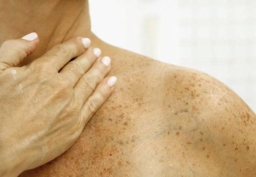 Пятна на коже коричневого цвета, фото, все причины и лечение