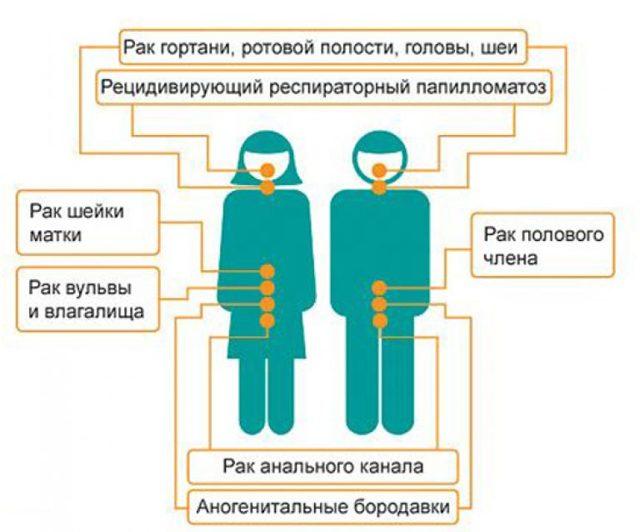 Папилломы на лице, фото, причины, симптомы и лечение