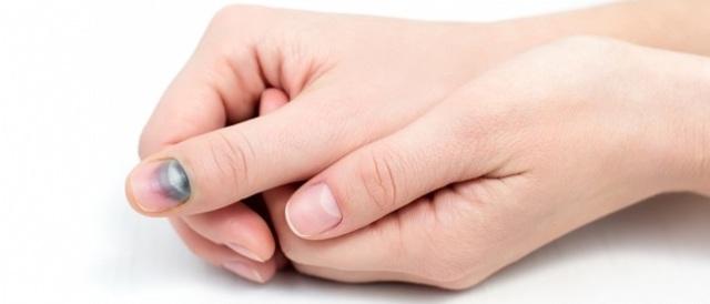 Потемнели ногти на больших пальцах ног: фото, причины, лечение