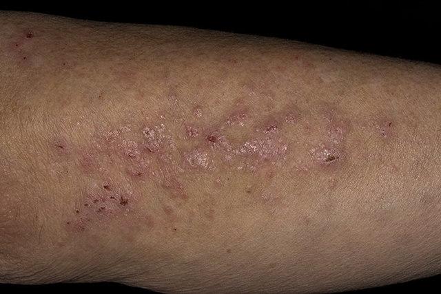 Красные точки на ногах - фото, все 7 причин и что делать