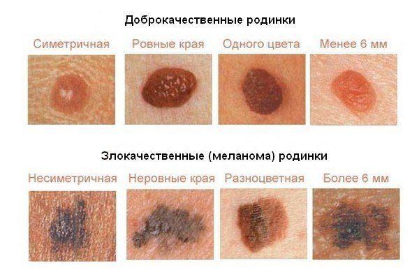 Сухие пятна на коже - их виды с фото и причины появления