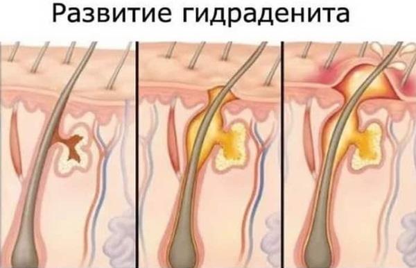 Шишка под мышкой - фото, все причины и лечение