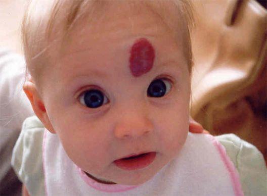 Красное пятно на лбу у новорожденного, это не опасно?