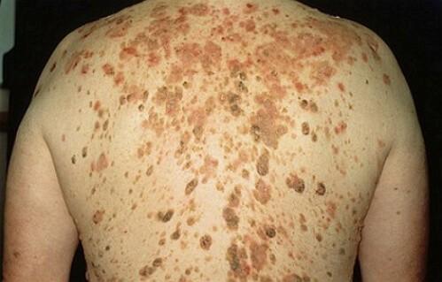 Себорейный кератоз - фото, что это и как лечить