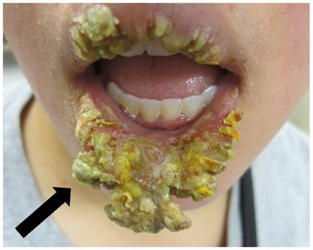 Трещины в уголках рта, фото, причины и как лечить хейлит