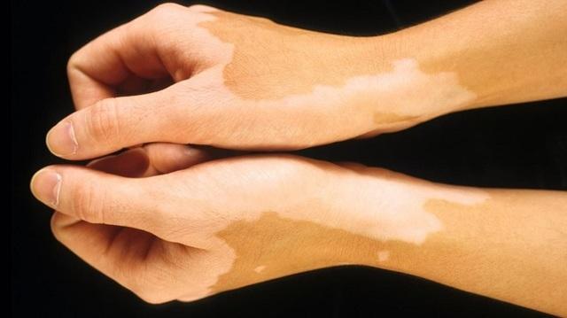 Почему на коже появляются белые пятна? Все причины с фото