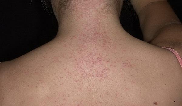 Сыпь при энтеровирусной инфекции у детей - причины с фото