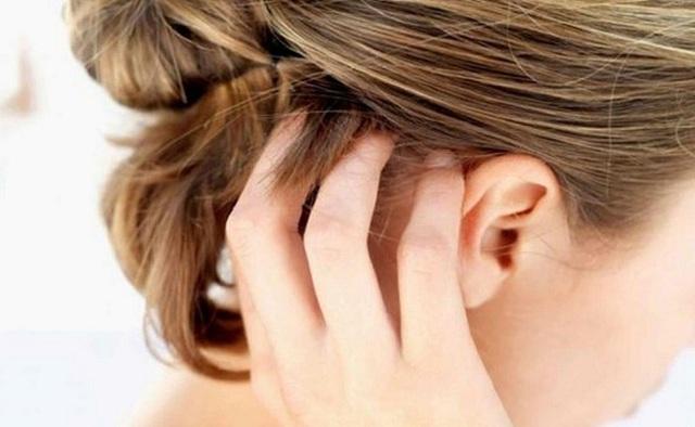 Папиллома на голове в волосах, фото, причины и как их убрать