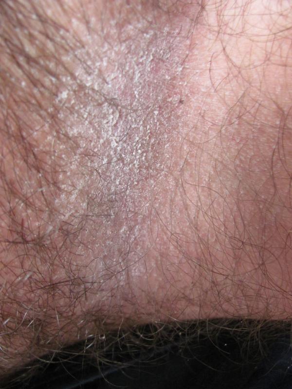 Прыщи на мошонке и яичках у мужчин: фото, причины и лечение