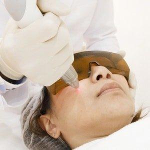 Как избавиться от пигментных пятен на лице очень быстро