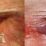 Трещины в заднем проходе, причины, симптомы, фото, лечение