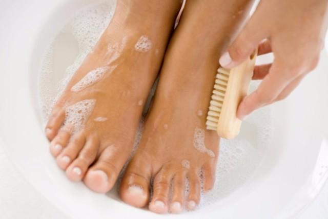 Бородавки на пальцах ног - причины с фото и как убрать