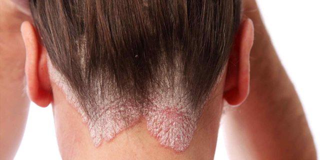 Чешется голова после мытья - все 4 причины и как лечить