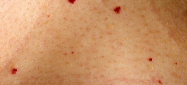 Симптом красных капелек при панкреатите (Симптом Тужилина)