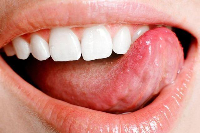 Папиллома на языке и под языком и как выглядит на фото