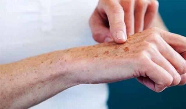 Печеночные пятна на теле (лице, спине, ногах), какая бывает сыпь.