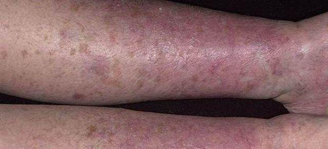 Сохнет кожа на ногах - все причины с фото и как лечить
