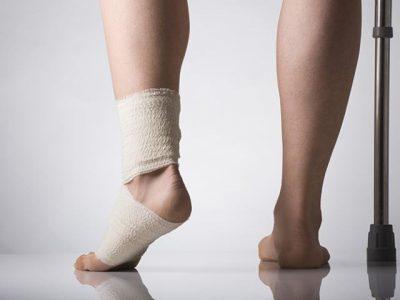 Разрыв связок голеностопа - как определить, и какая нужна реабилитация