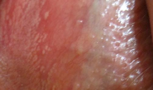Прыщи на больших или малых половых губах у девушек и женщин